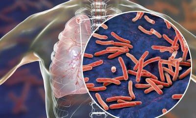 Lupin, TB Alliance join hands for new therapy for drug-resistant Tuberculosis